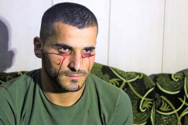 """""""Kan ağlayan"""" Iraklı genç, Türkiye'den yardım bekliyor"""