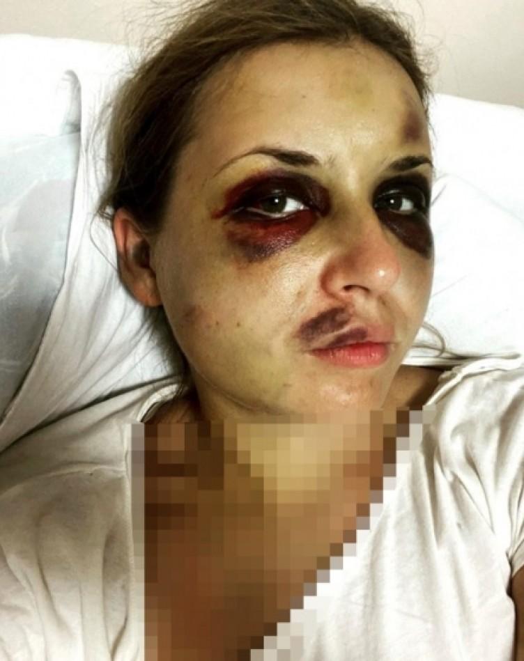 Ukraynalı ünlü sunucuya trende hem tecavüz hem şiddet!