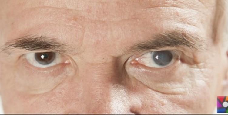 Şeker hastaları dikkat! Kör olmamak için gözlerinizi ihmal etmeyin