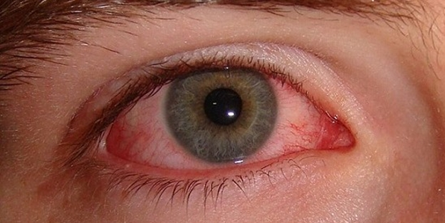 Göz kanlanması neden olur? Ne iyi gelir?