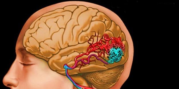 Beyin kanaması nasıl gerçekleşir? Beyin kanamasının belirtileri nelerdir?