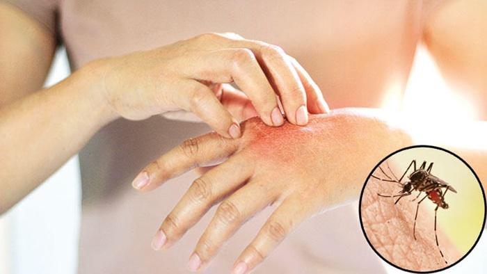 Dirençleri arttı, ilaçlar fayda etmiyor: Yeni kâbus sivrisinek