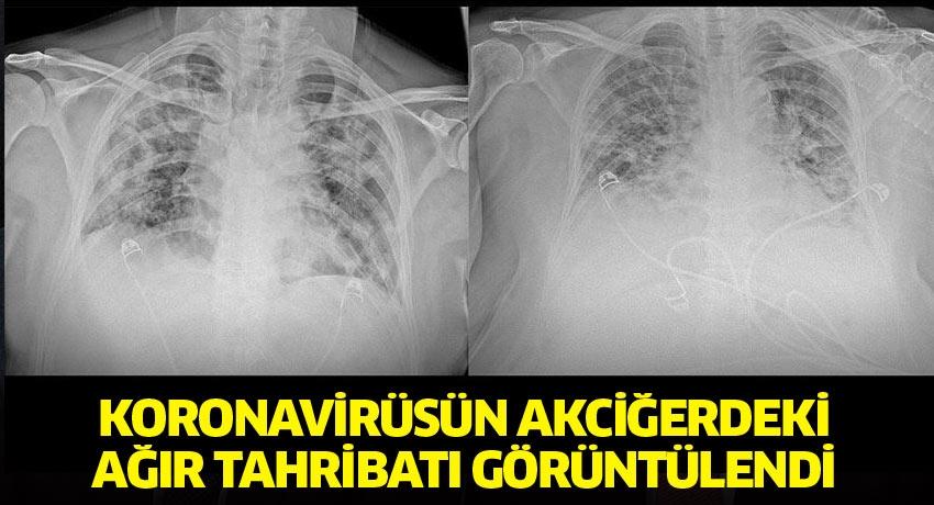 Koronavirüsün akciğerdeki ağır tahribatı görüntülendi