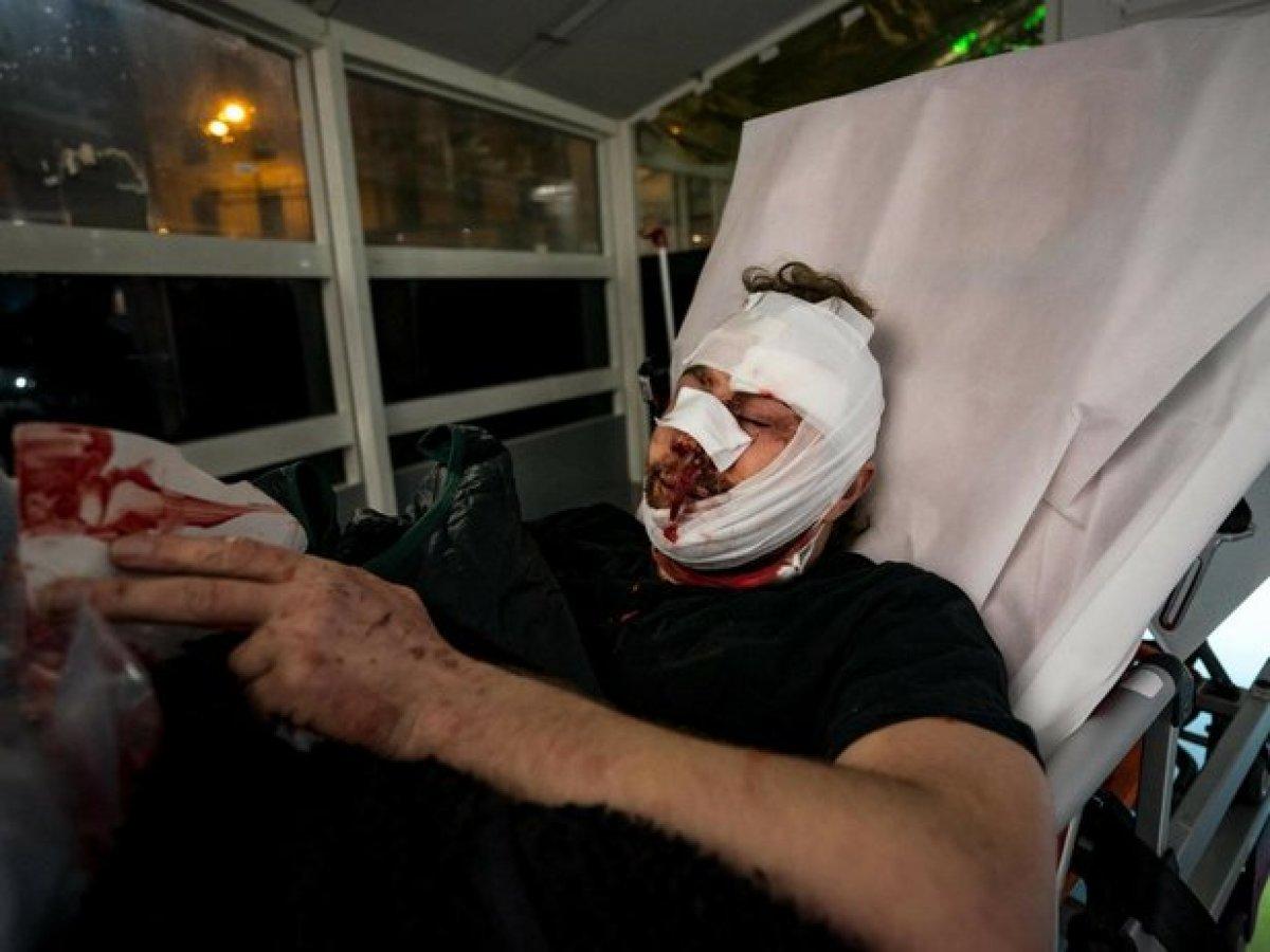Fransa'da polis şiddetin dozunu arttırdı!