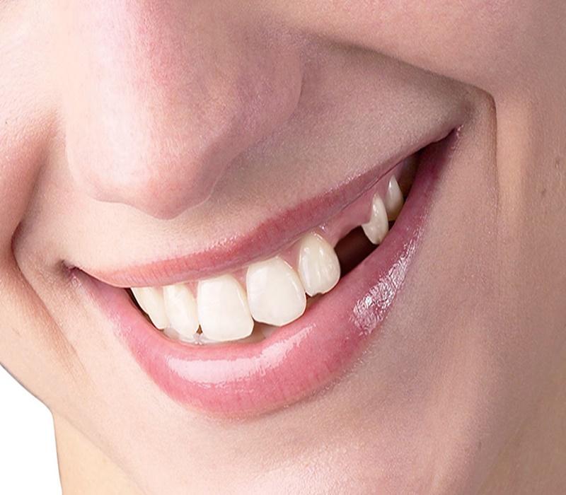 Eksik dişlerin sağlığımıza etkileri nelerdir?