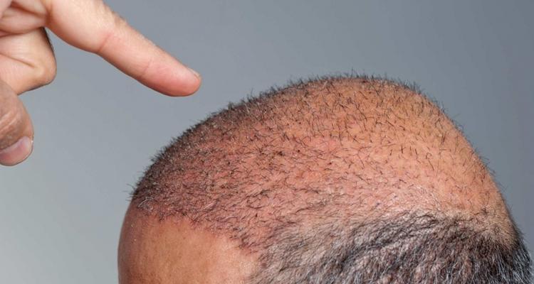 Saç ekimi yaptırmanın riskleri nelerdir?